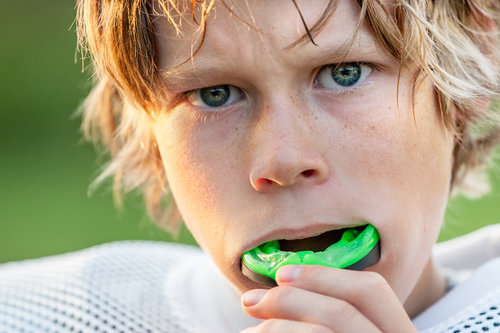 Mouthguards Are an Essential Piece of Athletic Gear