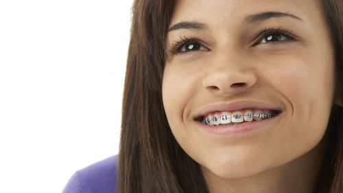 Your Child Needs Braces, Now What?